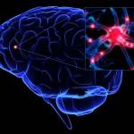 Neurorrehabilitación se escribe con dos erres
