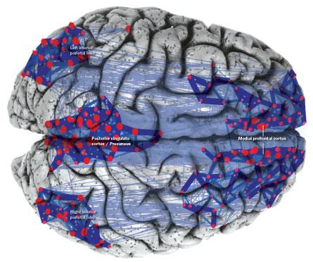 La red en reposo. Implicaciones en Alzheimer, esquizofrenia y autismo