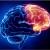 Plasma rico en plaquetas y su papel en la neurorrehabilitación