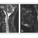 Malformación de Chiari tipo I. Caso clínico.