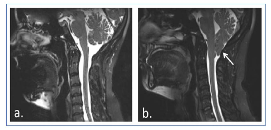 Chiari Malformation Type I. A Clinical Case.