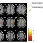 Cambios neuropsicológicos y en el volumen de sustencia gris en pacientes con esclerosis múltiple tras una terapia de re cognitiva asistida p_ord