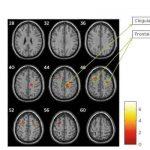 Investigación concluye cambios neuropsicológicos y en el volumen de sustancia gris en pacientes con esclerosis múltiple tras una terapia de rehabilitación cognitiva asistida por ordenador con NeuronUP