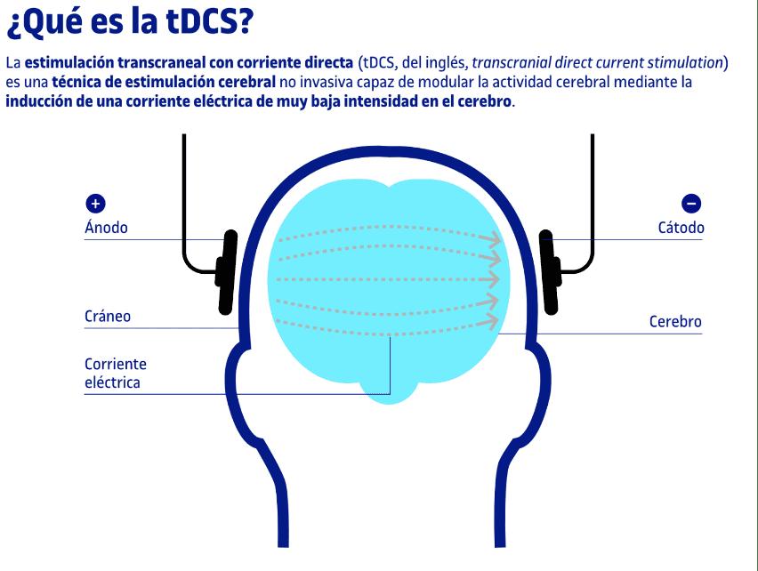¿Qué es la tDCS?